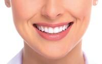 Góc thắc mắc: Bọc chụp hay dán răng sứ? Phương pháp thẩm mỹ răng nào tốt?