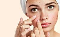Chị em quanh năm không lo bị mụn da mặt nếu thực hiện chế độ ăn uống theo lời khuyên của chuyên gia