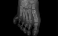 Cắt ngón thừa, tạo hình bàn chân cho bé 3 tuổi