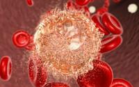 Sống quá sạch có thể khiến trẻ em dễ bị ung thư