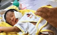 Bé trai sơ sinh ở Bình Thuận bị chôn sống, mặt phải khâu 10 mũi nguy kịch