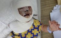 Hình ảnh mới của bé gái bị ngã vào bếp lửa khiến biến dạng khuôn mặt