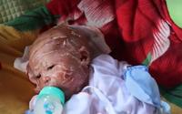 Rớt nước mắt hình ảnh bé 2 tháng tuổi oằn mình đau đớn vì da tróc toàn thân
