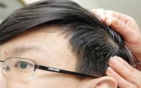 Cách trị tóc bạc sớm