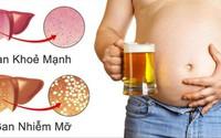 Nguyên nhân và cách phòng ngừa gan nhiễm mỡ
