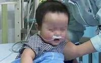 Bé 3 tuổi chết vì suy gan do cha dại dột cho con uống thứ rất kị trẻ nhỏ