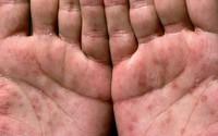 Bệnh giang mai lây qua đường tình dục thường bắt đầu với những dấu hiệu này, mọi chị em cần nắm rõ