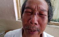 Bảo vệ đánh nhà thơ 68 tuổi ngất xỉu