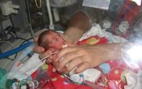 Bất chấp quy tắc, nữ y tá đặt bé sơ sinh hấp hối nằm cạnh chị sinh đôi, tạo nên kết quả chấn động