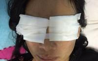 Quảng Bình, con dâu bị mẹ chồng tạt thẳng ca axit vào mặt