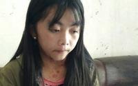 Cô bé dân tộc Mông từng mắc bệnh lạ kêu cứu vì phải bỏ học lấy chồng