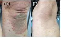 Điều trị hiệu quả bệnh vẩy nến bằng kết hợp thảo dược