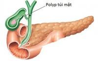 Polyp túi mật có phải phẫu thuật?