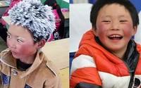 Mới năm ngoái sống nghèo khó, giờ đây, cậu bé có mái tóc băng tuyết bất ngờ