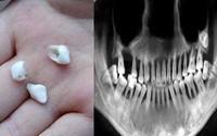 Cô gái 28 tuổi rụng răng, móm mém như cụ bà 80 vì thói quen xấu