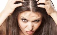 Nếu gặp các biểu hiện này ở tóc, hãy gặp bác sĩ vì rất có thể có điều gì đó không ổn trong cơ thể