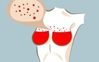 Nếu có 6 dấu hiệu này ở ngực, đừng coi nhẹ nên đi khám ngay trước khi muộn