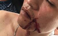 2 nữ sinh mâu thuẫn, ông kéo người vác dao, súng truy sát khiến 3 người bị thương