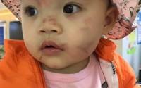 Hải Phòng: Đã có kết luận vụ cháu bé 14 tháng tuổi nghi bị bạo hành ngay trong ngày đầu đi học