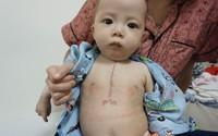 Bé trai dân tộc 7 tháng tuổi bị tim bẩm sinh sức khỏe ổn định hơn