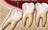 Có nên nhổ nhiều răng số 8 cùng lúc?