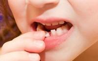 Đừng vội vứt răng sữa của con đi vì chúng có thể