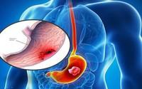 Những dấu hiệu sớm của ung thư dạ dày cần ghi nhớ