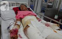 Đi phụ hồ nuôi vợ con, chồng bị điện giật té xuống đất phải cắt bỏ một chân, tính mạng nguy kịch