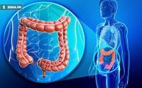 BS khuyến cáo: Uống 1 lon nước ngọt/ngày, ung thư xuất hiện sớm, ác tính hóa nhanh