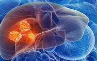 BS ung bướu: Đây là những việc bạn có thể làm để ngăn ngừa ung thư gan, rất nên tuân thủ
