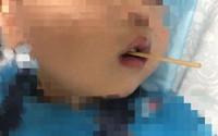 Từ vụ bé 3 tuổi suýt mất mạng khi ăn xúc xích, chuyên gia khuyên gì về món khoái khẩu này