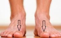 Bàn chân xuất hiện dấu hiệu này, cảnh báo thận đang ngày một suy kiệt, hãy điều trị sớm