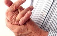 Biến chứng nguy hiểm của bệnh VIÊM KHỚP và biện pháp khắc phục hiệu quả