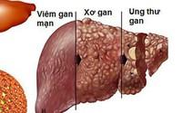 25.000 người chết vì ung thư gan mỗi năm, cách nào phát hiện sớm?