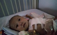 Món quà đặc biệt đến với bé trai 4 tháng tuổi mang đủ thứ bệnh