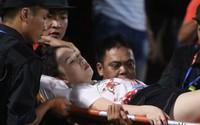 Đã làm rõ đối tượng bắn pháo sáng vào nữ cổ động viên tại sân vận động Hàng Đẫy