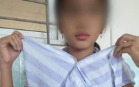 Bệnh viện Nhi Thanh Hóa phẫu thuật thành công 3 trẻ bị bệnh nang đường mật bẩm sinh