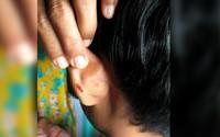 Không làm bài tập về nhà, học sinh bị thầy giáo phạt bằng cách dập ghim vào tai