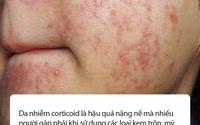 Kem trộn: Tác nhân kinh hoàng khiến da mặt bị nhiễm corticoid bị tổn thương nghiêm trọng, mài mòn, viêm nhiễm mãn tính