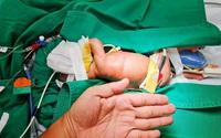 Bé gái phải trải qua cuộc đại phẫu sau 2 ngày chào đời