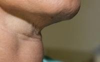 Người phụ nữ được phát hiện mắc ung thư sau khi thấy nuốt khó