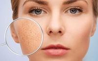 """Áp dụng 1 trong 8 cách se khít lỗ chân lông da mặt vừa đơn giản vừa lành dưới đây, các nàng sẽ trở thành """"chị đẹp"""" chỉ trong phút chốc"""