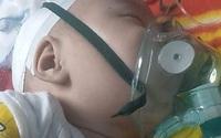 Bé trai hơn 4 tháng nguy kịch sự sống vì teo thực quản khi bố mẹ quá nghèo