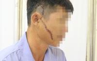 Người đàn ông bị khung tôn sắt nặng 50 kg rơi trúng mặt
