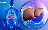Đây mới là 6 món hủy hoại gan khiến gan của bạn 'hãi hùng' nhất, muốn gan khỏe mạnh cần tránh xa những thực phẩm này