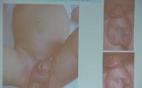Phẫu thuật tái tạo bộ phận sinh dục cho trẻ em