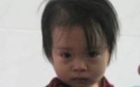 Cứu sống bệnh nhi 1,5 tuổi bị hóc hạt dưa suốt từ Tết