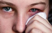 Cách xử lý khi bị đau mắt đỏ