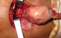 Cắt khối u hiếm gặp ở thành họng