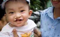 Phẫu thuật môi, hàm ếch tại Hà Nội